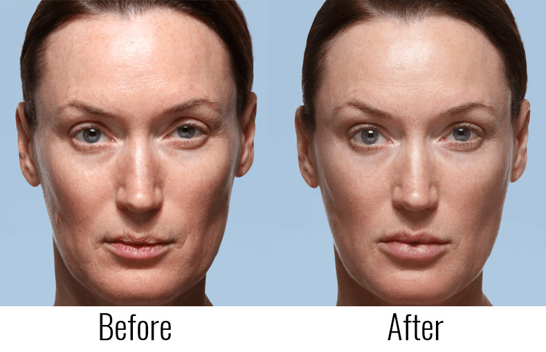Jevederm Before and After Image Mint Laser Clinic